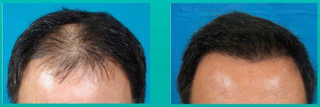 bone marrow saç maskesi