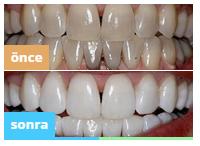 Pro White diş jelini