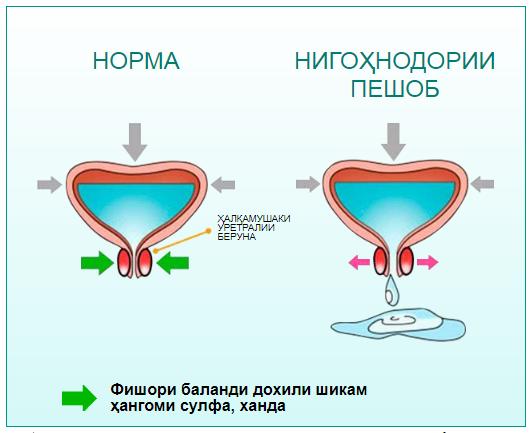 компонентҳои Cytofort